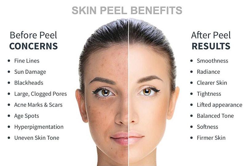 Skin Peel Benefits