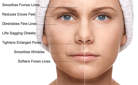 What Microneedling Does